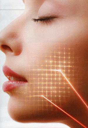 Фракционный абляционный фототермолиз асклепион лазерная эпиляция в смоленске цены гринхол